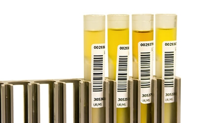 Drug and Alcohol Screening Test Tubes